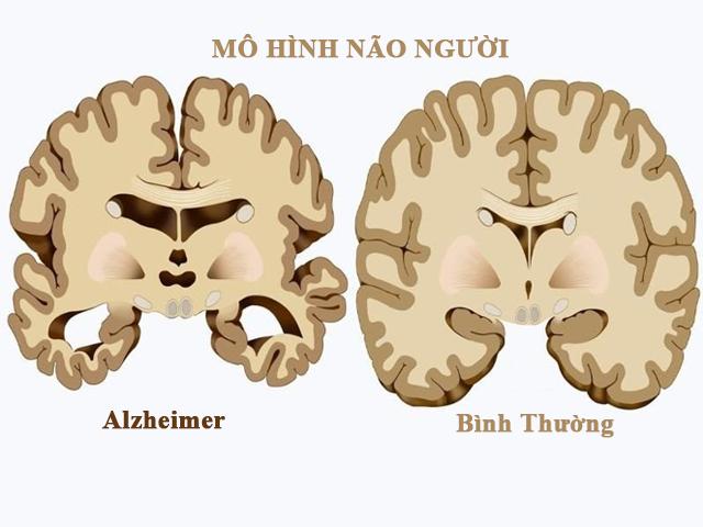 bệnh alzheimer ở người già